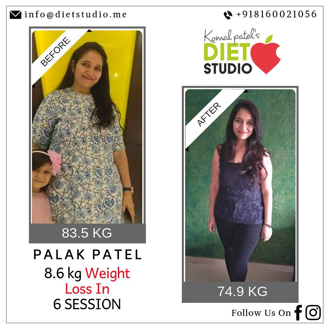 The picture says it all  Our one more happy transformation  Palak lost only  8.6 kg but you could see more of inch loss or fat loss. This is what we target not only weight but overall health, fat loss, building stamina and developing self love.  #weightloss #fatloss #inchloss #komalpatel #diet #dietplan #dietclinic #dietitian #weightlossdiet #stamina #transformation